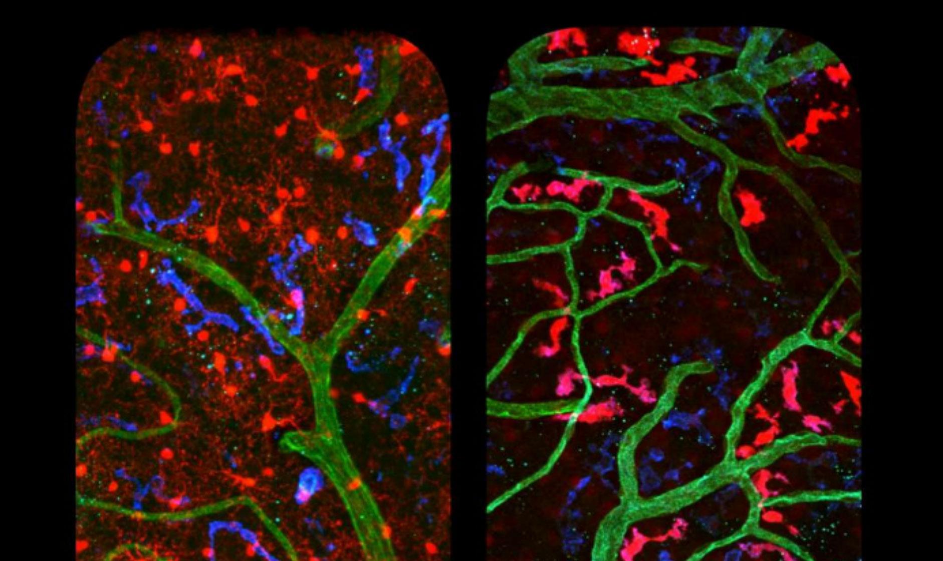 En rouge, la microglie (à gauche) et les macrophages périvasculaires (à droite) ont des formes et des localisations différentes