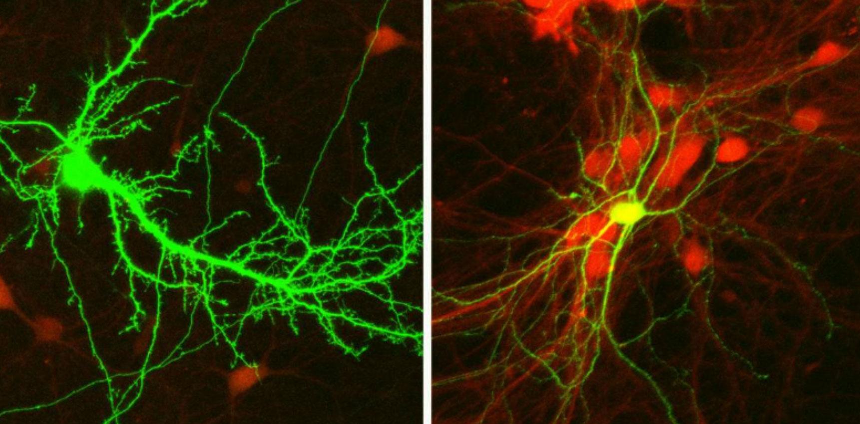 Des neurones de souris – excitateurs (à gauche) et inhibiteurs (à droite) – vus sous un microscope